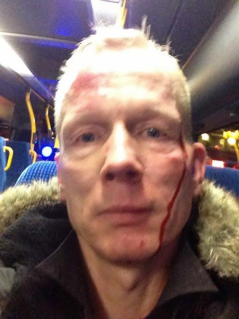 dk.bent.buss.vold