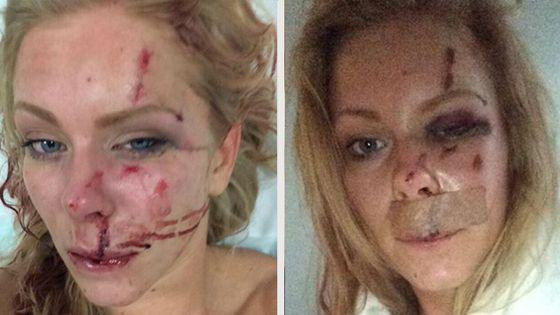 Nanna Skovmand overfaldet
