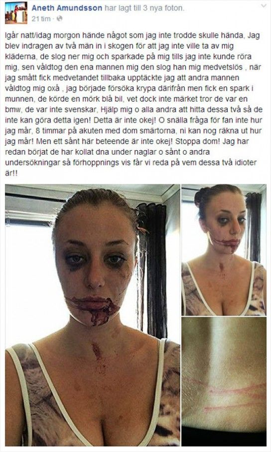AnethAmundsson250514slettet-544x906