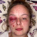 Britisk jente forteller om grusomme, organiserte overgrep som fremdeles pågår